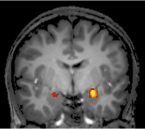 r1_reconsolidation-amygdalal